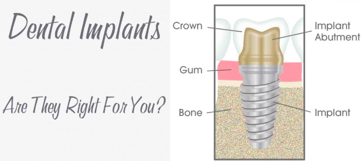 Dental Implants, Are They Right For You?