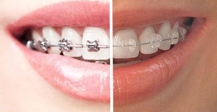 Six Month Braces vs. Conventional Metal Braces